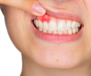 preventative dental care in chicago | teeth whitething in chicago