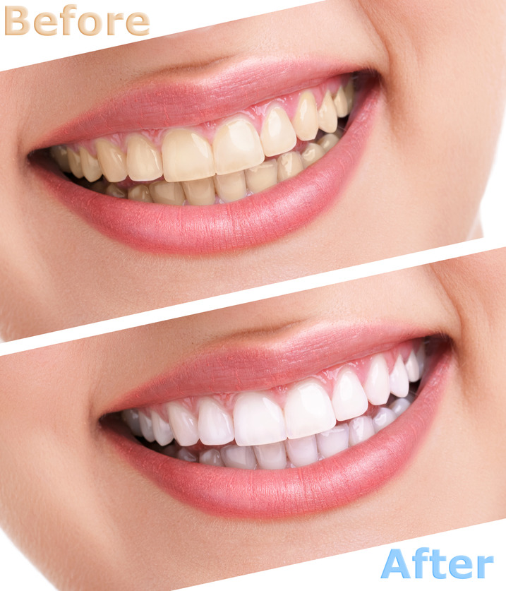 best teeth whitening clinic in chicago | bleaching teeth treatment in chicago