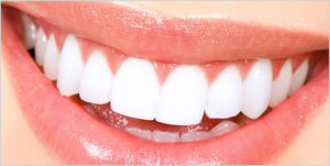 white fillings dental clinic in Chicago | teeth whitening clinic in Chicago